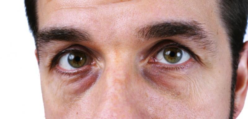 Ojeras y bolsas por malos hábitos de vida y como cambiarlos