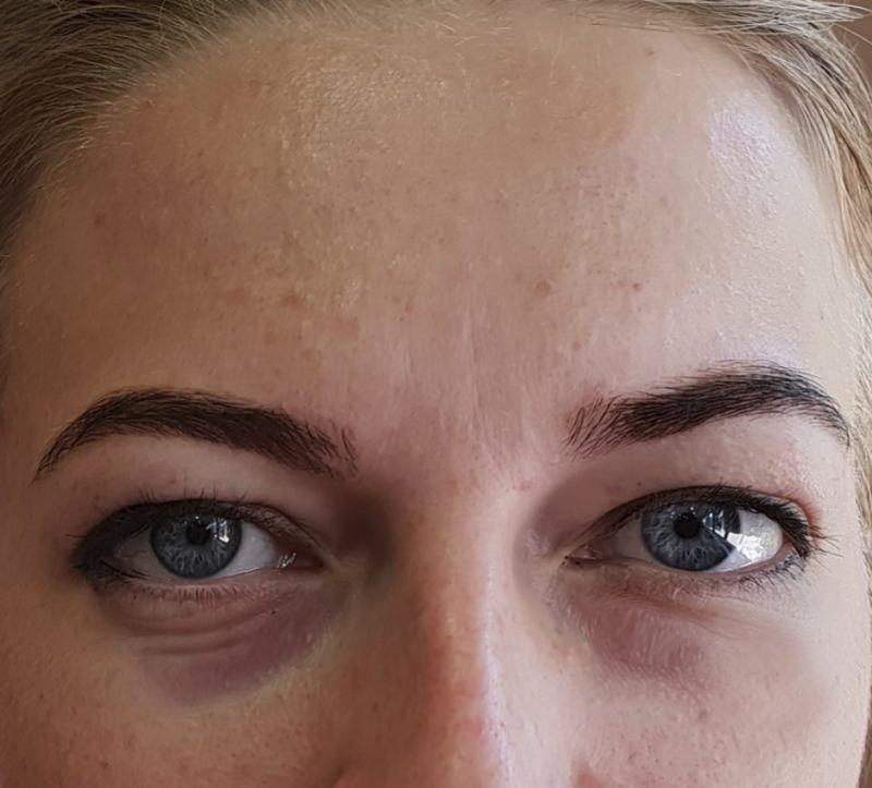 masajeadores-contorno-de-ojos-bolsas