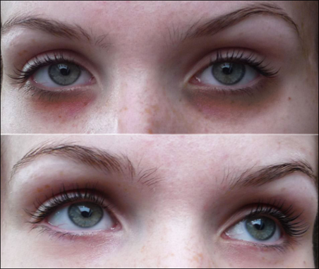 antes-y-despues-carboxiterapia ojeras