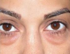 remedios naturales bolsas en los ojos