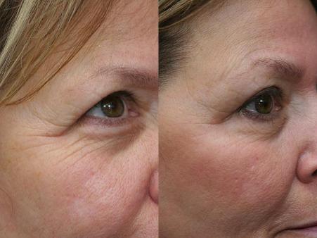 botox antes y despues arrugas
