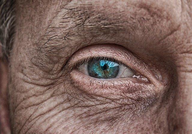 remedios naturales arrugas rostro
